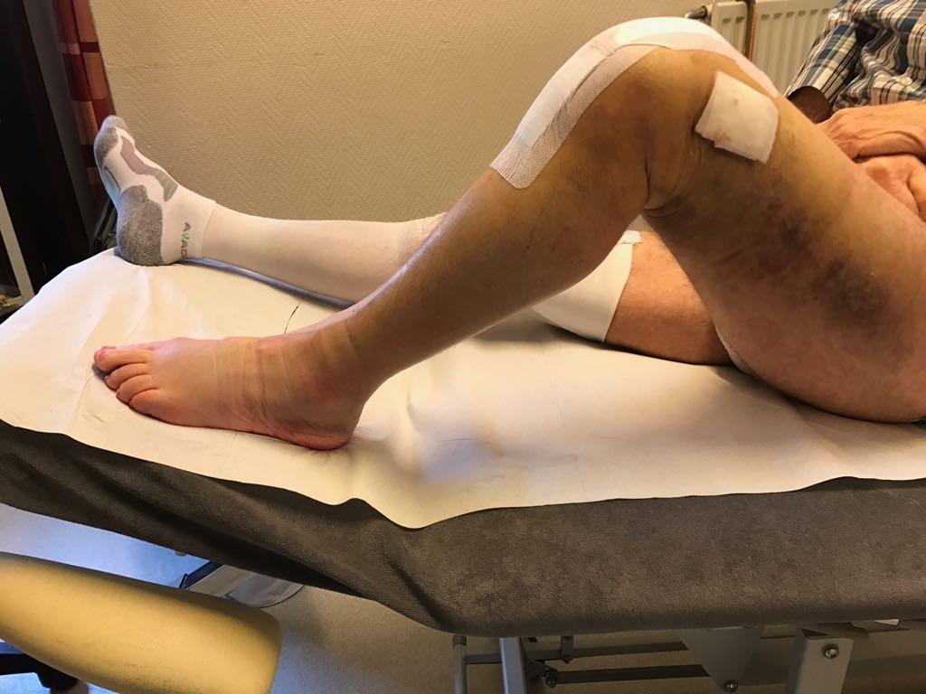 Postoperatieve revalidaties